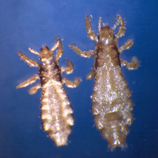 Pictures of Head Lice